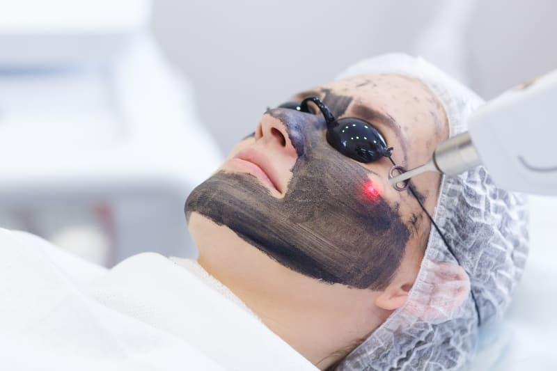 acne laser clinica obrador