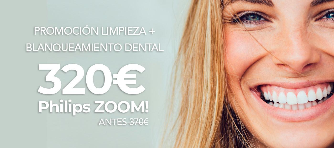 Promoción Limpieza + Blanqueamiento dental